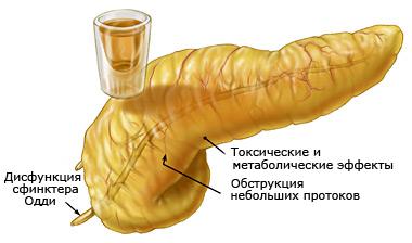Последствия аллергии на алкоголь