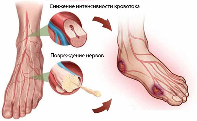 Алкогольная нейропатия нижних конечностей
