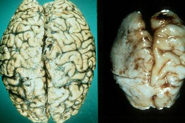Мозг алкоголика