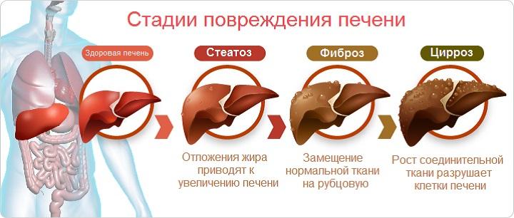 Развитие стеатоза печени