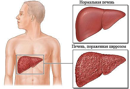 Источником заражения вирусного гепатита а являются