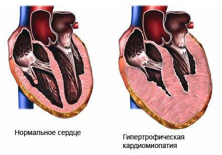 Кардиомиопатия - симптомы и лечение