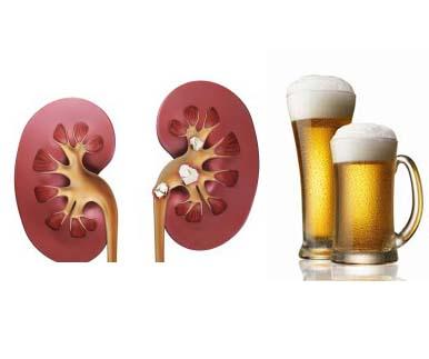 Влияние алкогольных напитков на почки