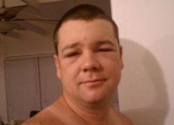 Опухло лицо после пьянки что делать
