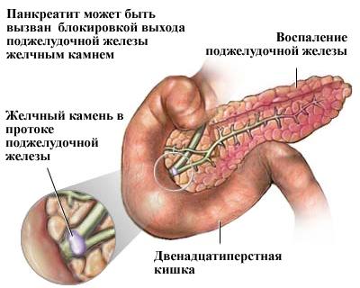 Панкреатит и алкоголь