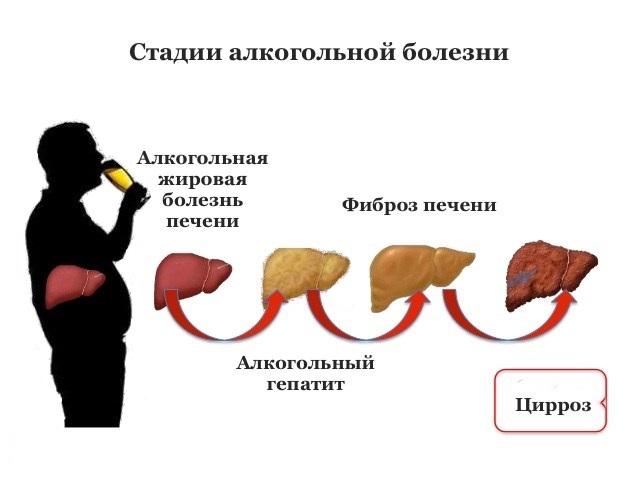 Болезни печени от алкоголя