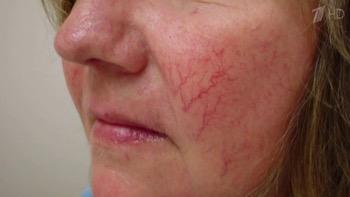 Цирроз печени - симптомы у женщин