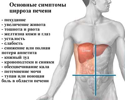 Цирроз печени - симптомы
