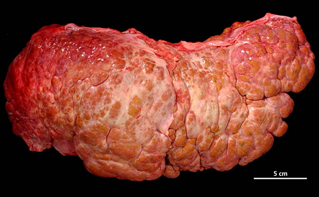 Фиброз печени: степени по Метавир, симптомы и лечение