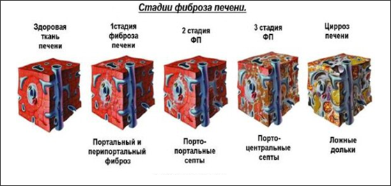 Шкала Метавир фиброза печени