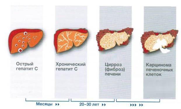 Виды гепатита печени