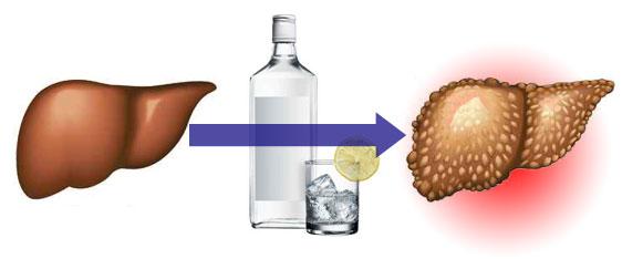 Какие травы лечат печень после алкоголя