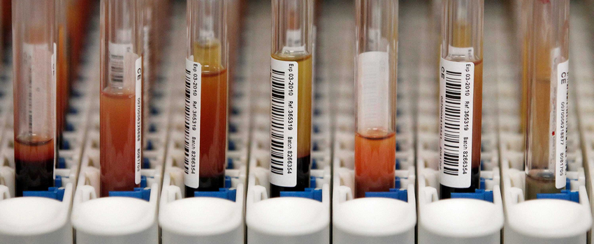 Как долго наркотики выводятся из организма?